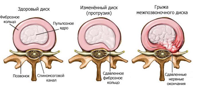 Остеохондроз шейного отдела позвоночника в астане